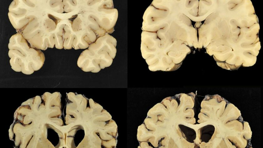 Photos provided by Boston University shows sections from a normal brain, top, and from the brain of former University of Texas football player Greg Ploetz, bottom, in stage IV of chronic traumatic encephalopathy.