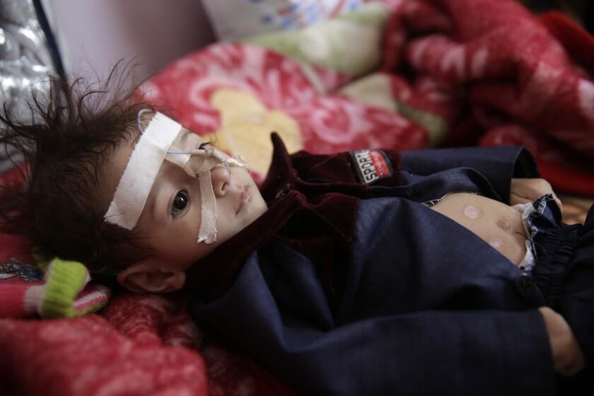 Virus Outbreak Mideast Children