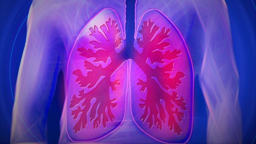 COPD is the fourth leading cause of death worldwide, according to the World Health Organization.