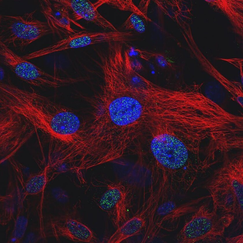 Human embryonic stem cells. The green markers indicate the presence of a protein expressed only in these cells.