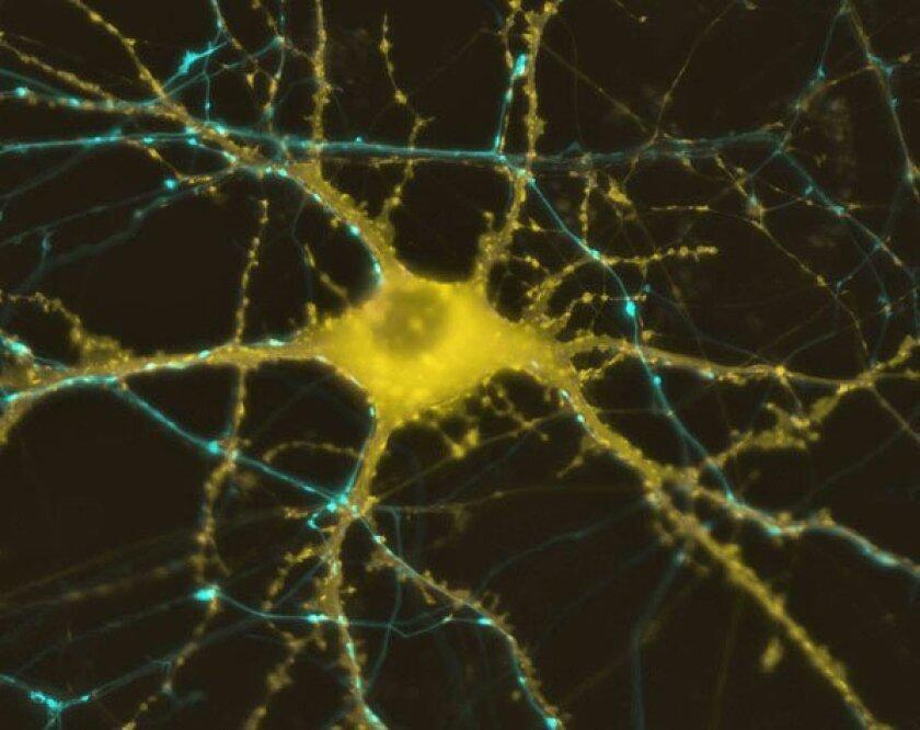 A human neuron.