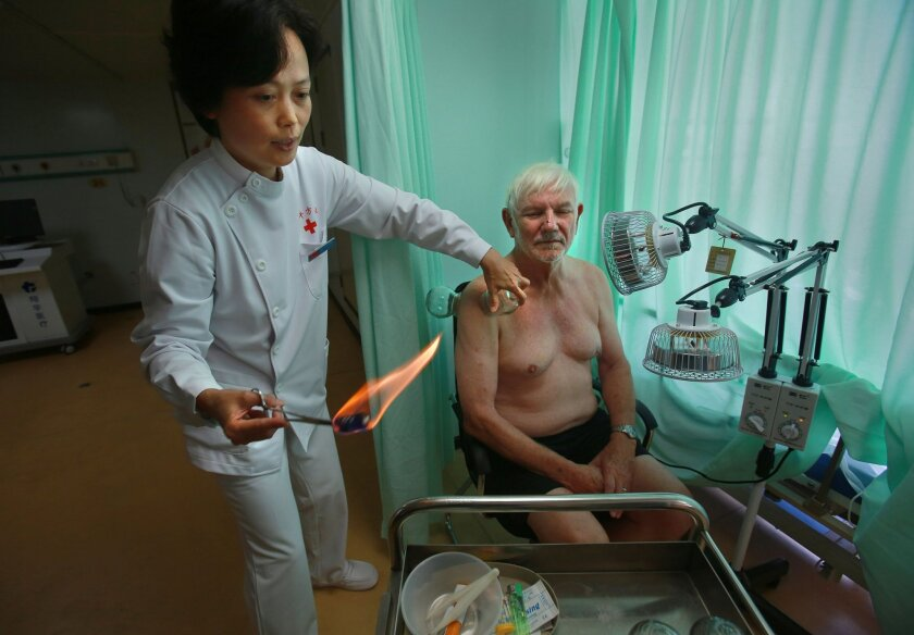 Dr. Lei Lei, left, takes the air out of a glass cup with a flame, then places one of several such cups on patient Michael Blasgen, woh was visiting the Chinese hospital ship Thursday at the San Diego waterfront.  A Chinese hospital ship, the Ark Peace, is visiting San Diego, it's only stop on the m