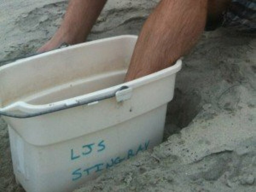San Diego lifeguards can provide hot water for soaking a stingray wound, which is the best way to soothe the pain and rid the area of toxins. Pat Sherman