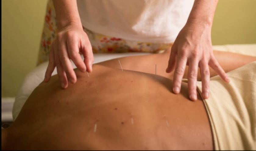 Acupuncture and more are offered at Sage Acupuncture in Pacific Beach.