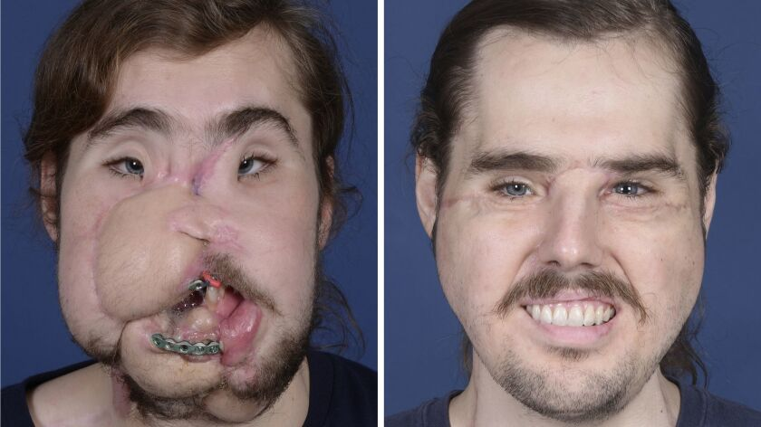These photos provided by NYU Langone Health, show patient Cameron Underwood, left, on March 15, 2017