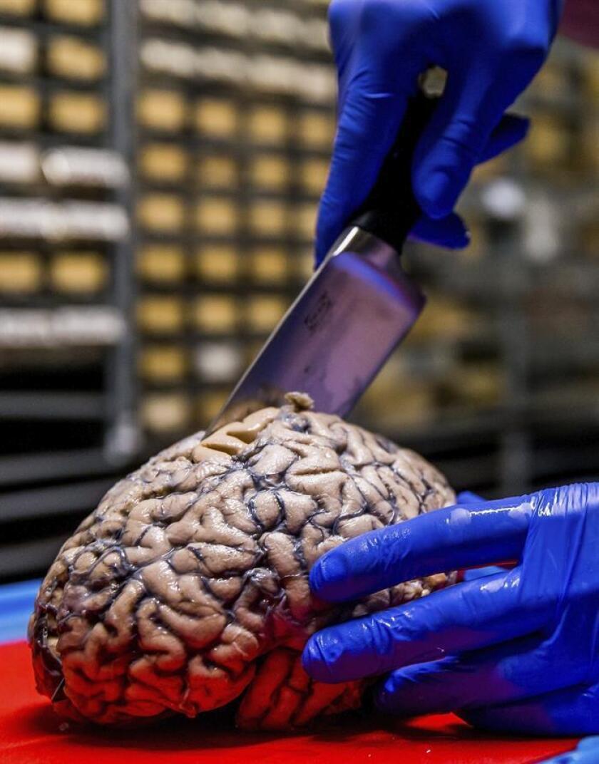 Vista de la disección de una parte del cerebro. EFE/Archivo