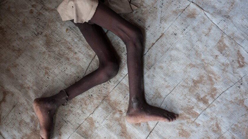 The legs of a young boy suffering from acute malnutrition at a camp outside Maiduguri, Nigeria.