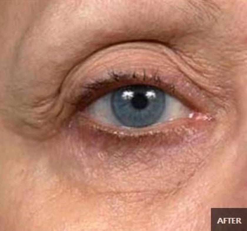 Thermage in La Jolla can lead to a more youthful appearance.