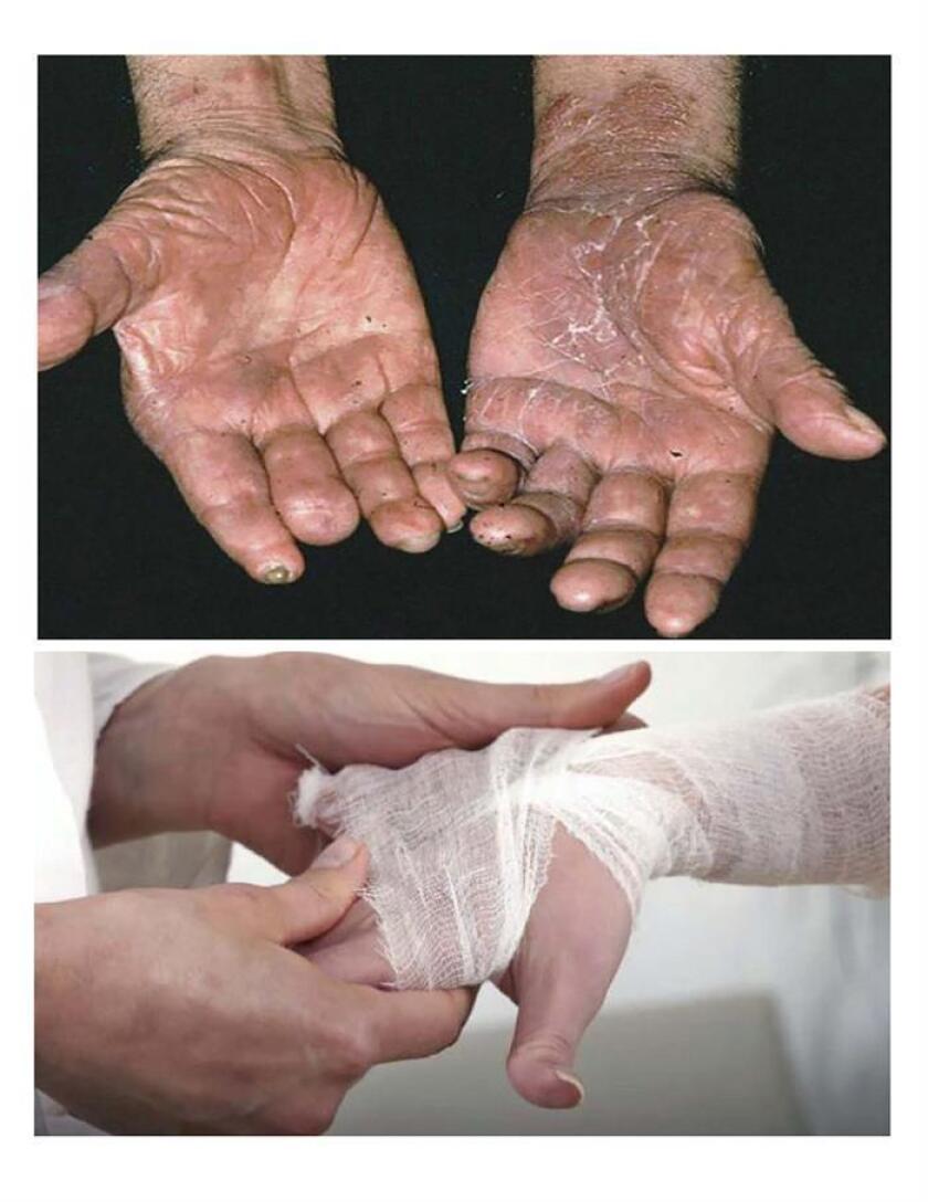 Manos de pacientes con lepra en un hospital en Ciudad de México.