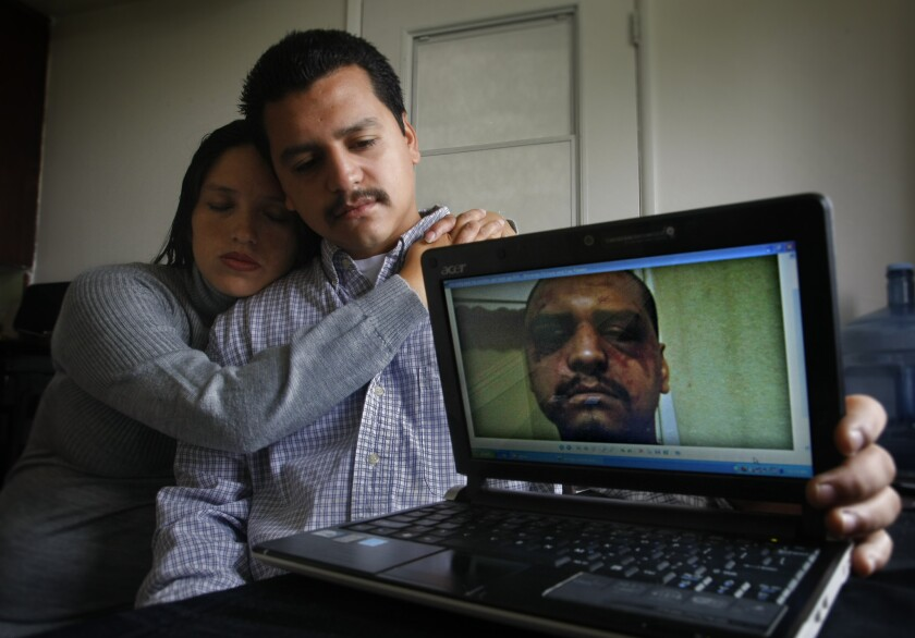 Gabriel Carrillo and his then-girlfriend -- now his wife -- show a photo she took of Carrillo a few days after he was severely beaten by L.A. County Sheriff's deputies in Men's Central Jail.