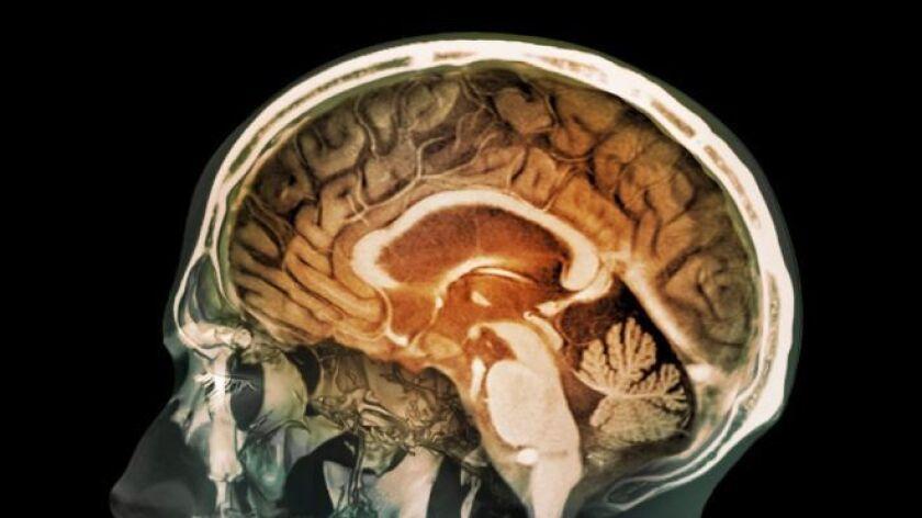 Es la primera vez que se encuentra evidencia de que partículas de la contaminación pueden llegar al cerebro.