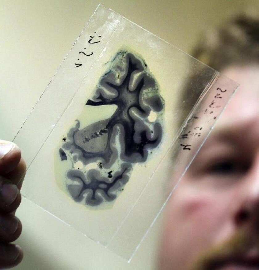 Ejercicios físicos semanales ayuda a personas con riesgo de padecer alzhéimer
