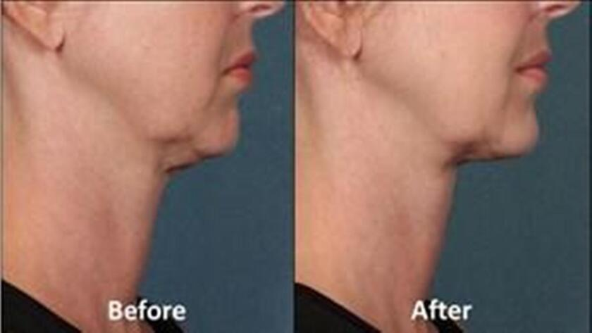 FDA approves double-chin treatment