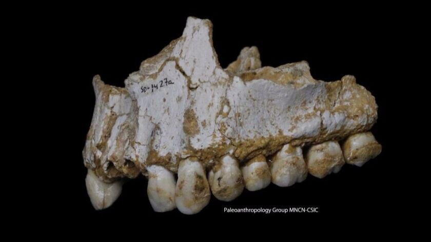 A dental calculus deposit can be seen on the rear molar (right) of this Neanderthal upper jaw from El Sidrón cave in Spain. This individual was eating poplar, a source of aspirin, and had also consumed moldy vegetation that included a natural antibiotic.