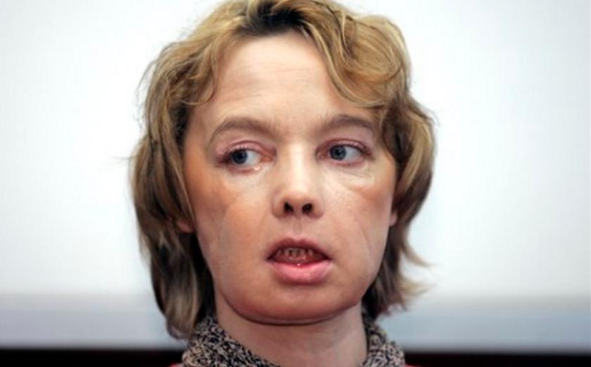 ARCHIVO - En esta foto del 6 de febrero del 20o6, Isabelle Dinoire, la mujer que recibió el primer trasplante de rostro en el mundo, en una operaciòn el 27 de noviembre del 2005, habla con reporteros en su primera conferencia de presa tras la operación en el hospital de Amiens, en el norte de Francia. Dinoire, cuya la operación que preparó el camino para decenas de trasplantes similares en el resto del mundo, falleció tras una larga enfermnedad a los 49 años, se informó el martes, 6 de septiembre del 2016. (AP Foto/Michel Spingler