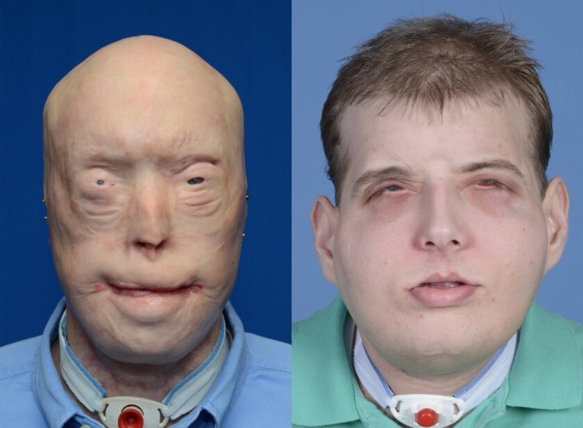 Facial transplant patient Patrick Hardison, a Mississippi firefighter, is seen here before and several weeks following his surgery. Now 93 days after his surgery, the patient has shown no signs of rejecting the facial tissue donated by a 26-year-old bike messenger who was declared brain-dead after an accident.