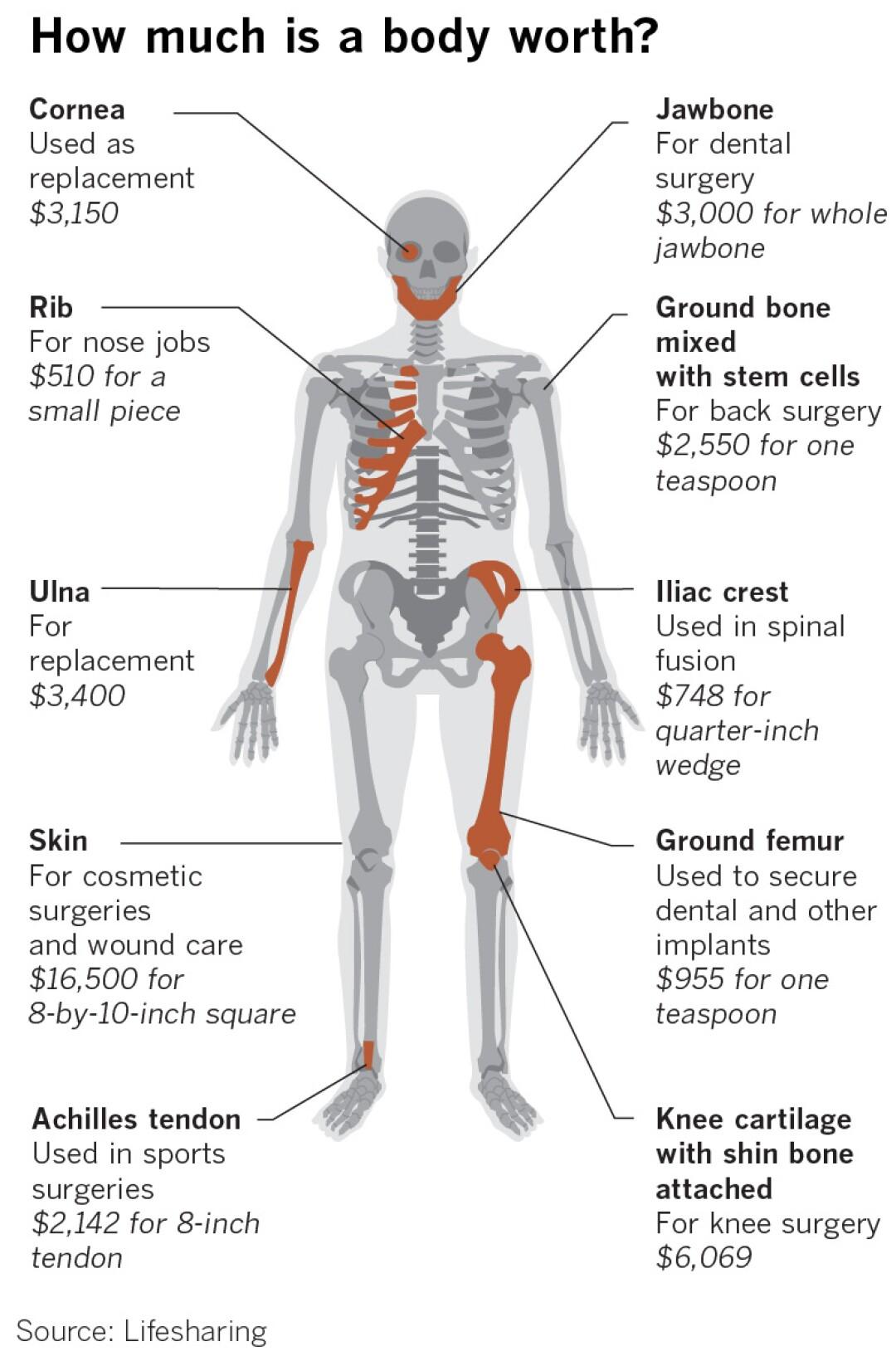 462298-w0-la-fi-body-parts-coroners-explainer.jpg
