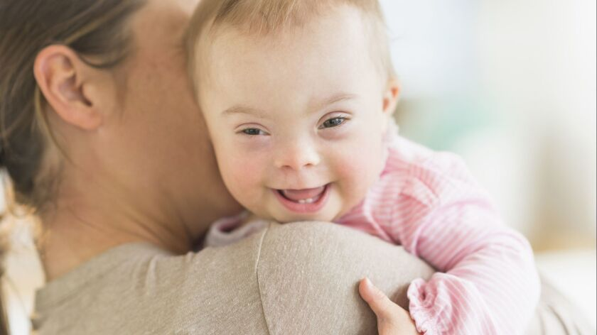 Caucasian mother holding baby girl with Down Syndrome User Upload Caption: About 6,000 U.S. childre