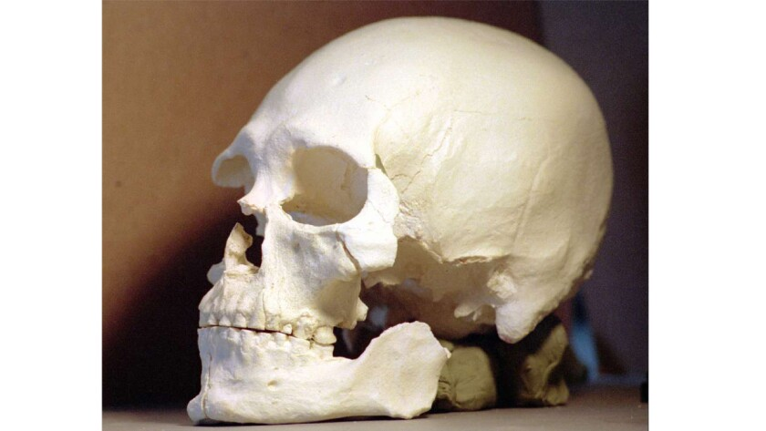 This plastic casting shows a controversial 9,200–year–old skull that belonged to Kennewick Man. New DNA analysis backs claims from tribes in the Northwest that he was a Native American.