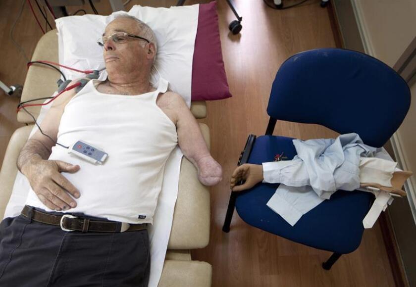 Un equipo internacional de investigadores desarrolló un método para restablecer la sensación de movimiento en los pacientes con brazos protésicos, según un estudio publicado hoy en la revista Science Translational Medicine. EFE/Archivo