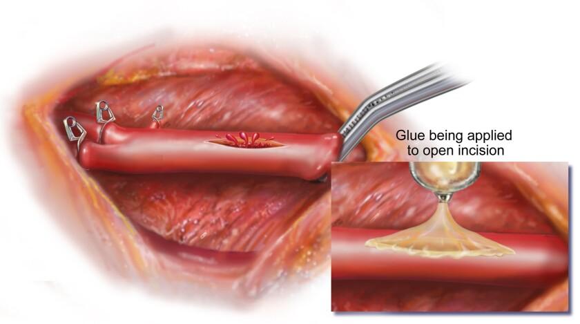 Bioinspired surgical glue