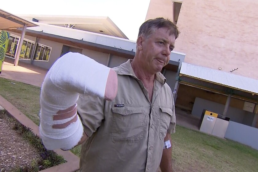 """In this image made from a video, Australian wildlife tour operator Sean Dearly is interviewed in Darwin, Australia Tuesday, Sept. 28, 2021. Dearly said he was lucky to escape more serious injury or even death when a crocodile lunged from a river and clamped his hand in its jaws. Dearly was attacked on Monday on the Adelaide River which is renowned for its """"jumping crocodiles,"""" large crocodiles that rise vertically from the water to snatch chicken carcasses dangled from long poles extended from tourist cruise boats. (CHANNEL 9 via AP)"""