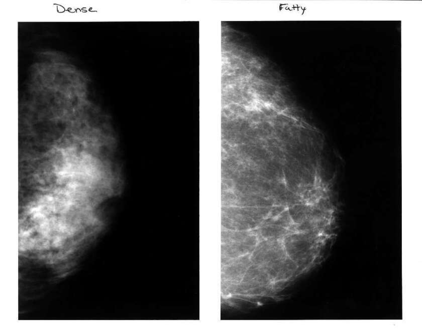 breast screening over 50 how often