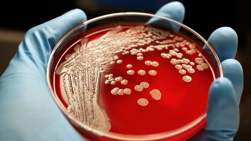Human hand holding MRSA colonies on blood agar plate. ** OUTS - ELSENT, FPG, CM - OUTS * NM, PH, VA