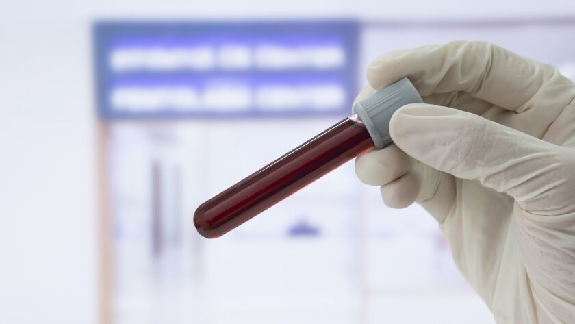 Los Angeles County health officials sent letters to 500 patients asking that they be tested for hepatitis C. Above, a blood sample.