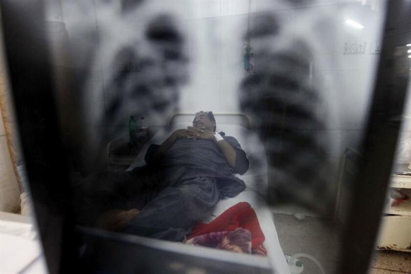 Un paciente enfermo de tuberculosis recibe tratamiento médico. EFE/Archivo