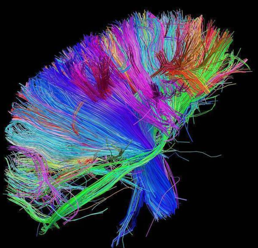 Multibillion-dollar map of human brain might not be worth it
