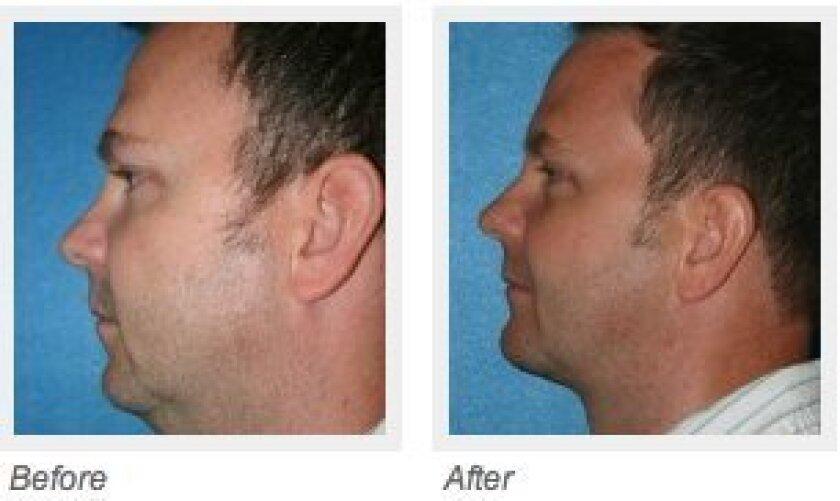 Chin augmentation surgery helps define a weak jawline.
