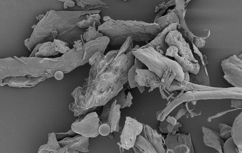 Meet your microscopic roommates: house dust under high magnification.