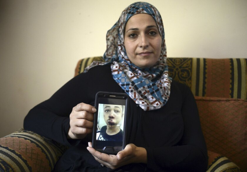 Suha Abu Khdeir, mother of 15-year-old Tariq Abu Khdeir, a U.S. citizen who goes to school in Tampa, Florida, sits in her home and shows a tablet with a photo of Tariq taken in a hospital after he was beaten and arrested by the Israeli police during clashes sparked by the killing Thursday of his cousin Mohammed Abu Khdeir, in Jerusalem, Saturday, July 5, 2014. Israeli police spokeswoman, said that Tariq Abu Khdeir had resisted arrest and attacked police officers. Tariq's father said he witnessed his son's arrest and insisted the boy was not involved in the violence. (AP Photo/Mahmoud Illean)
