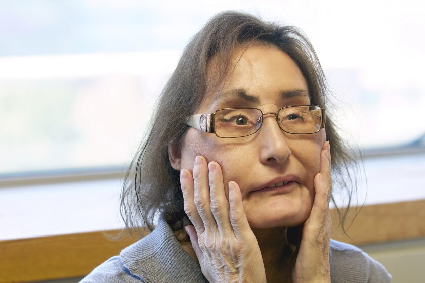 Connie Culp, first partial face transplant recipient in the U.S.