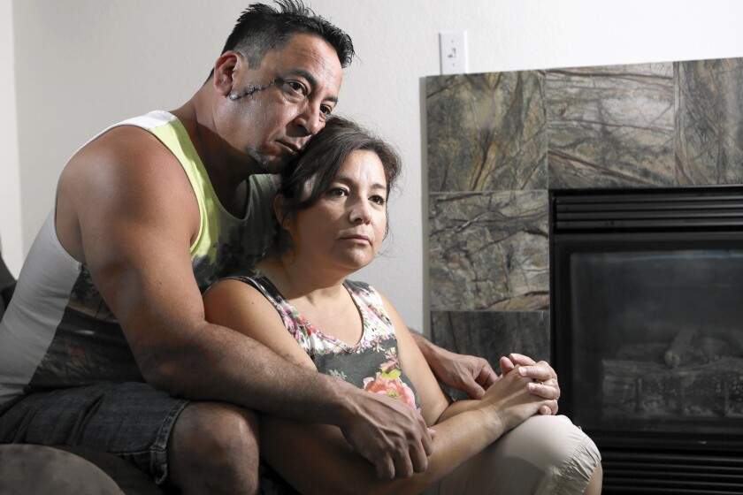 Anthony, left, and Cynthia Hernandez at their home in Chino. Both of them were stabbed by their mentally ill son, Aaron; the scar from the attack on Anthony is visible on his face.