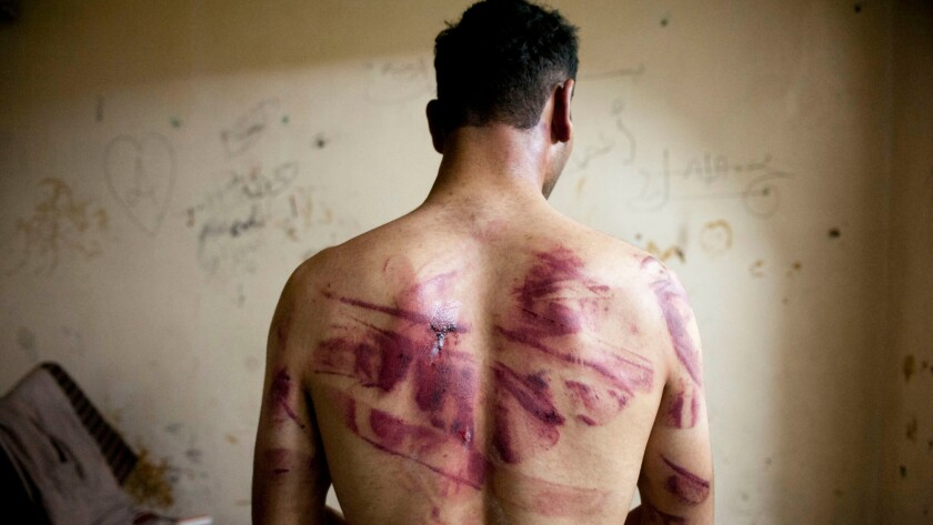 Syrian man shows marks of tortue on his back after he was released from prison in 2012.