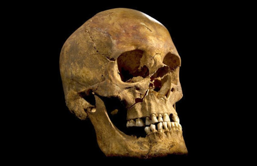 The skull of the skeleton found beneath a parking lot in northern England, which DNA tests have confirmed was that of King Richard III.