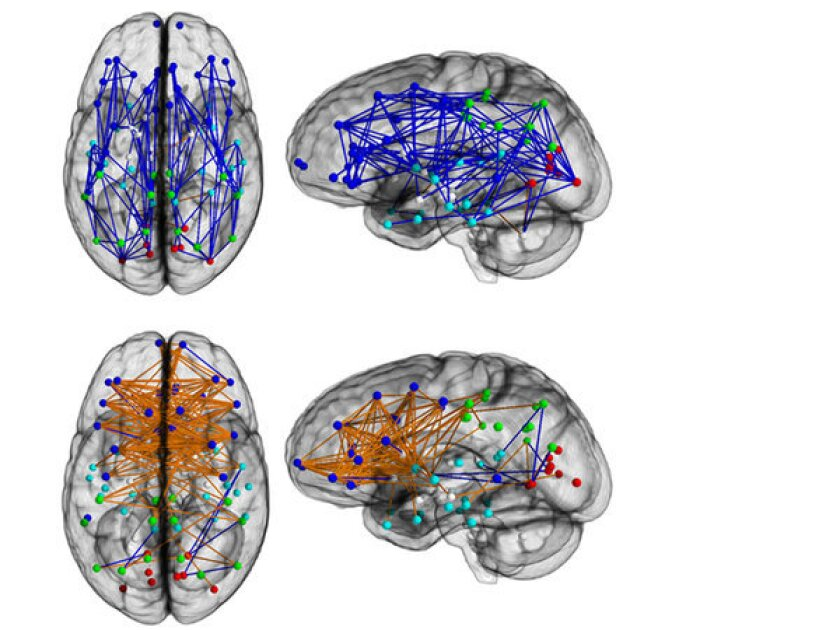 There is biology behind the gender gap, a study suggests. Male brains, above, show more connections within hemispheres, in blue, while inter-hemisphere connections, in orange, were more prevalent among females, below.