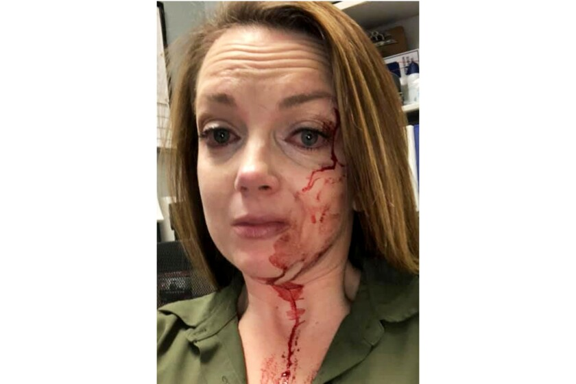 Samantha Clarke shows her bloodied face after she was assaulted at the Modesto store she manages.