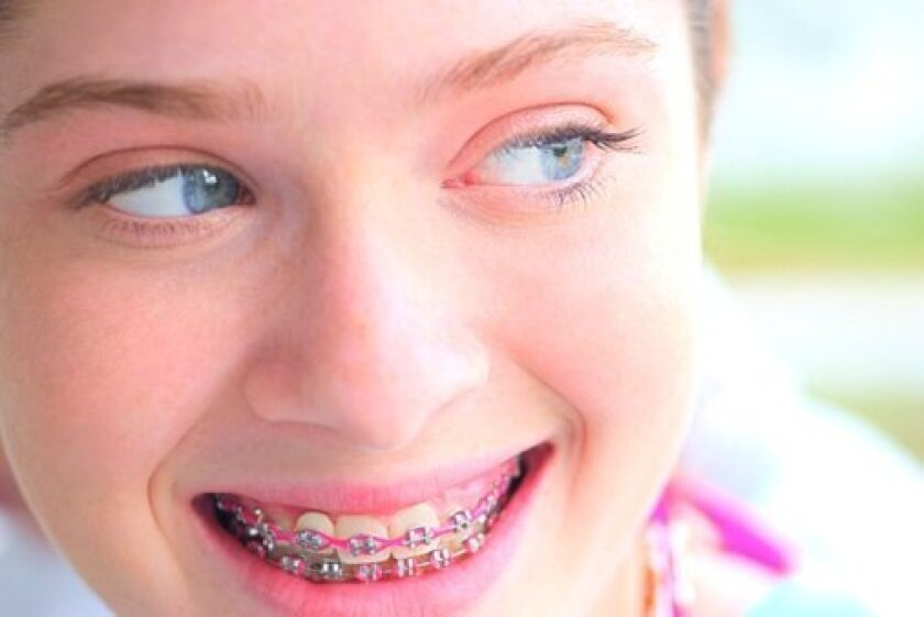 Color-customized braces are a fun way for kids to celebrate holidays and special events.