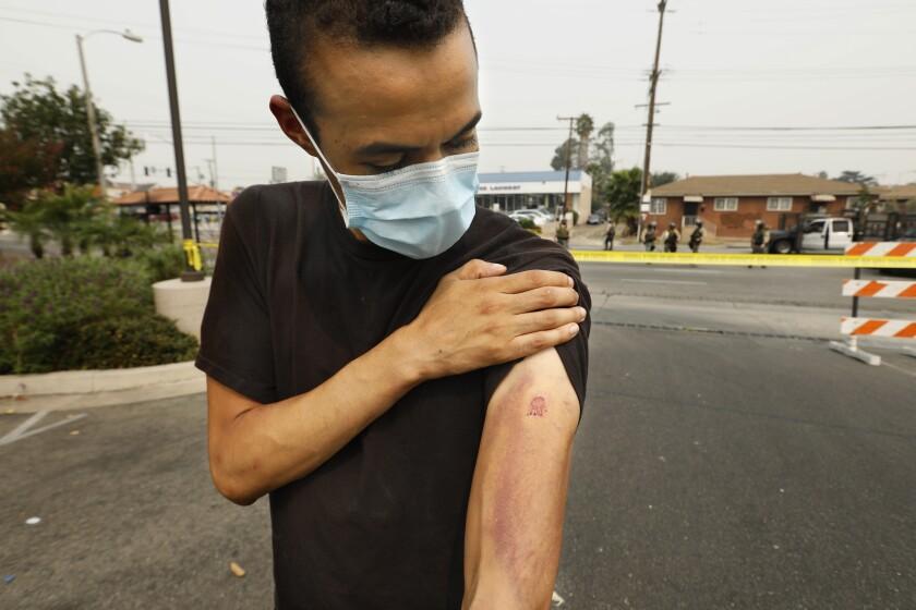 Matthew Sanders shows an injured arm
