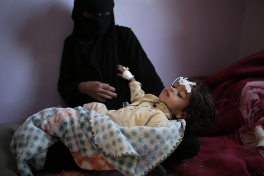 A woman holds a malnourished boy in Sanaa, Yemen.