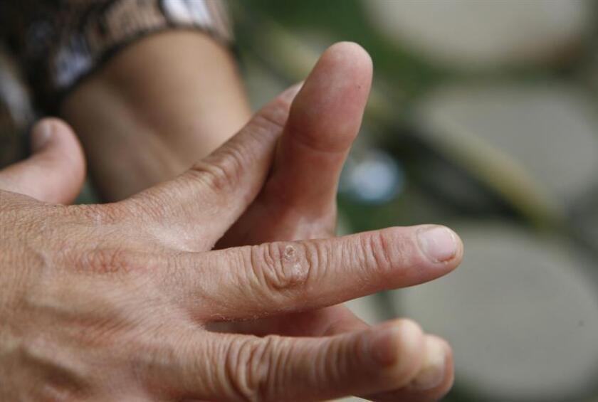 La psoriasis se expresa en codos, rodillas, parte baja de la espalda y cuero cabelludo principalmente. También se puede tener en axilas, ingles, zona perianal y uñas. EFE/Archivo