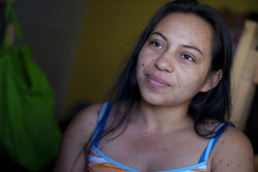 A woman who has chicken pox and preferred to not use her name remained in isolation on August 15, 2019 at the Agape World Mission shelter in Tijuana, Mexico.