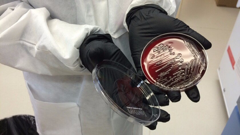 Ana Ong, a molecular lab tech at Walter Reed, holds a culture of E. coli with the drug-resistance gene called mcr-1.