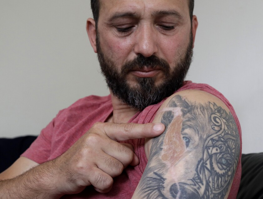 "In this Tuesday, Feb. 25, 2020, photo, Al Noor mosque shooting survivor Temel Atacocugu points to the scar of a bullet wound in his arm during an interview at his home in Christchurch, New Zealand. When the gunman walked into the mosque, Atacocugu was kneeling for Friday prayers. He looked up into the man's face, thinking he was a police officer because of his paramilitary outfit. Time slowed. Temel saw a puff of smoke come from the raised gun, felt a bullet smash into his teeth, and thought: ""Oh, my God, I'm dying."" (AP Photo/Mark Baker)"