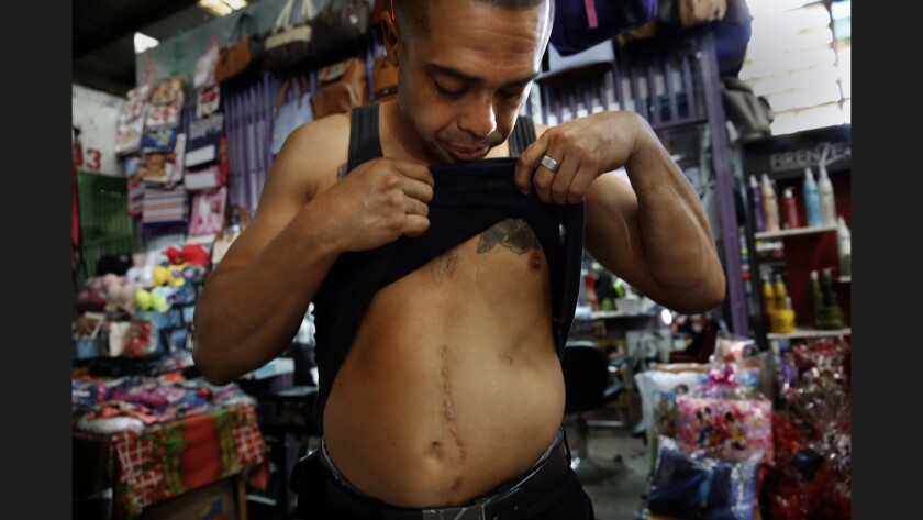 A man in El Salvador shows his gunshot wounds.