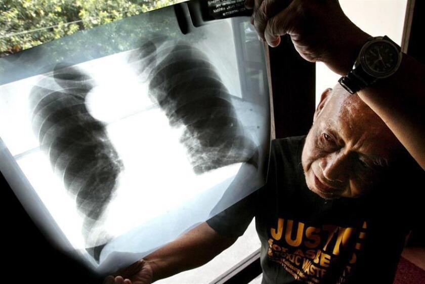 La prevención, el diagnóstico oportuno, la personalización del tratamiento y el acceso a los medicamentos son los principales retos que tiene el cáncer de pulmón, una de las principales causas de muerte en el mundo, dijo hoy el doctor Oscar Arrieta. EFE/Archivo
