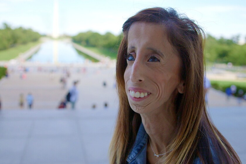 "Lizzie Velasquez in a scene from ""A Brave Heart: The Lizzie Velasquez Story."""